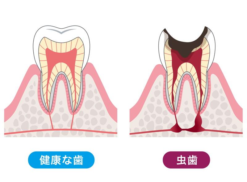 むし歯について