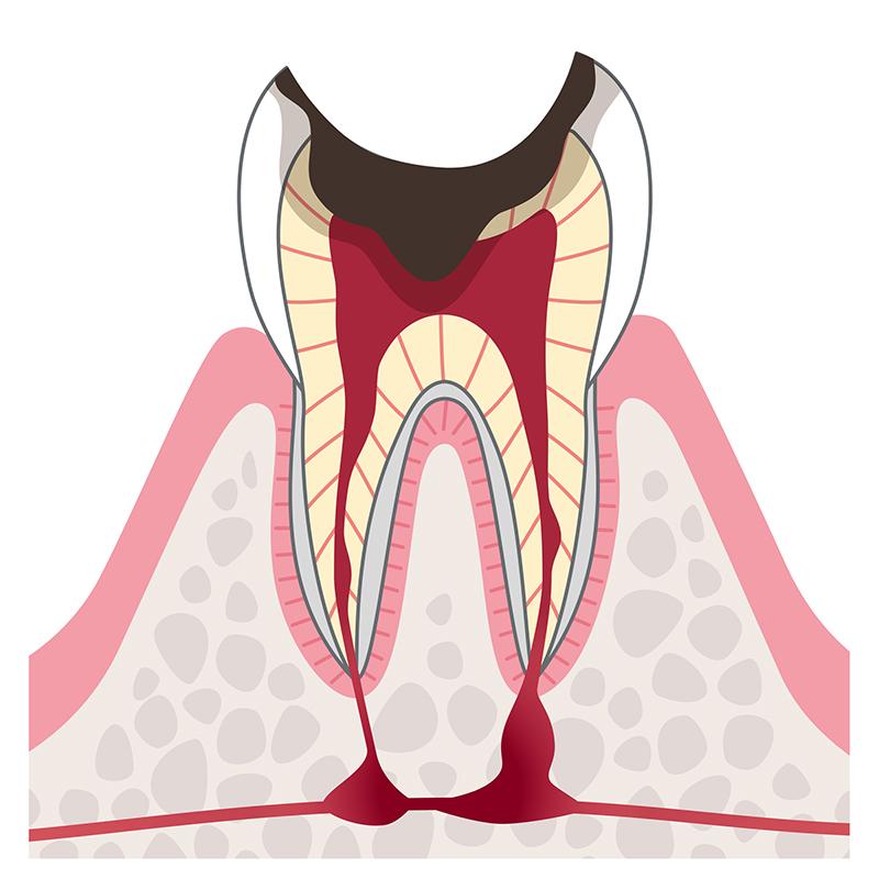神経まで達した虫歯
