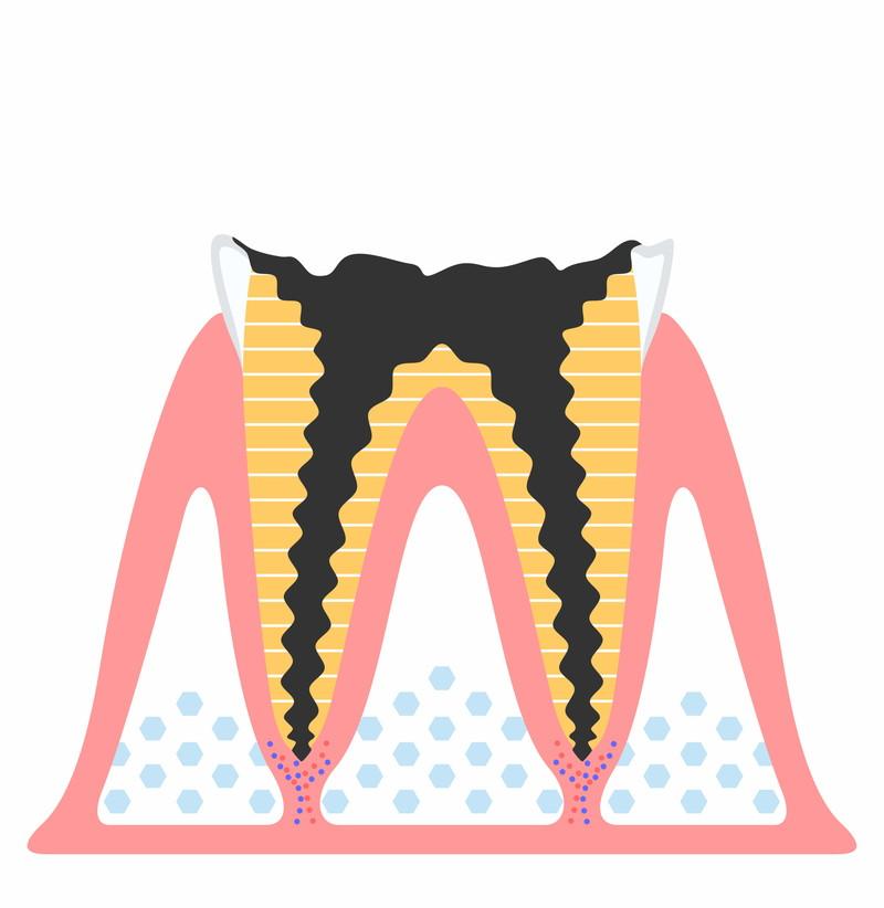 歯の根だけになった虫歯