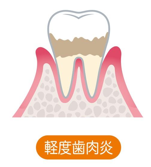 歯周病の進行段階と治療法について